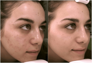 Before-and-after-mandelic-peel