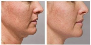 Dermaheal-Fat-dissolving-injections-before-and-after-result