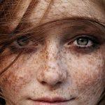 Przebarwienia skórne, pigmentacja i inne