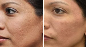 getting-rid-of-acne-scars