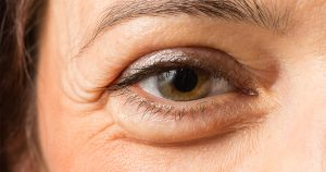 puffy-eye-1200x630