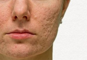 reason-4-acne-scars-fading