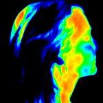 Termografia w służbie diagnostyki obrazowej skóry