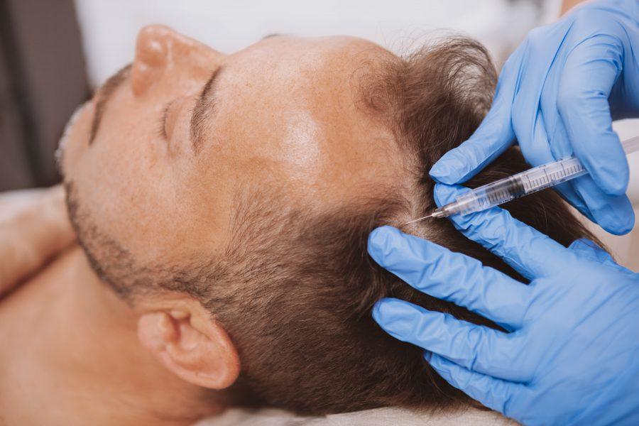 Łysienie u kobiet i mężczyzn – terapia osoczem bogatopłytkowym