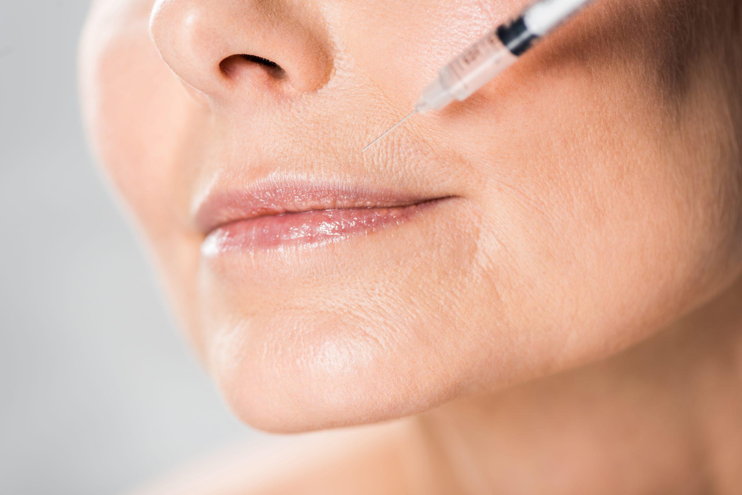 Wypełniacze a biostymulatory skóry