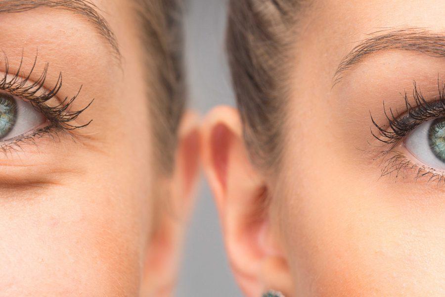 Skuteczność nowoczesnej terapii enzymatycznej w redukcji worków pod oczami