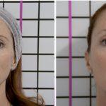 Zestawienie peelingów medycznych, które szybko i skutecznie pomogą odzyskać skórze zdrowy wygląd