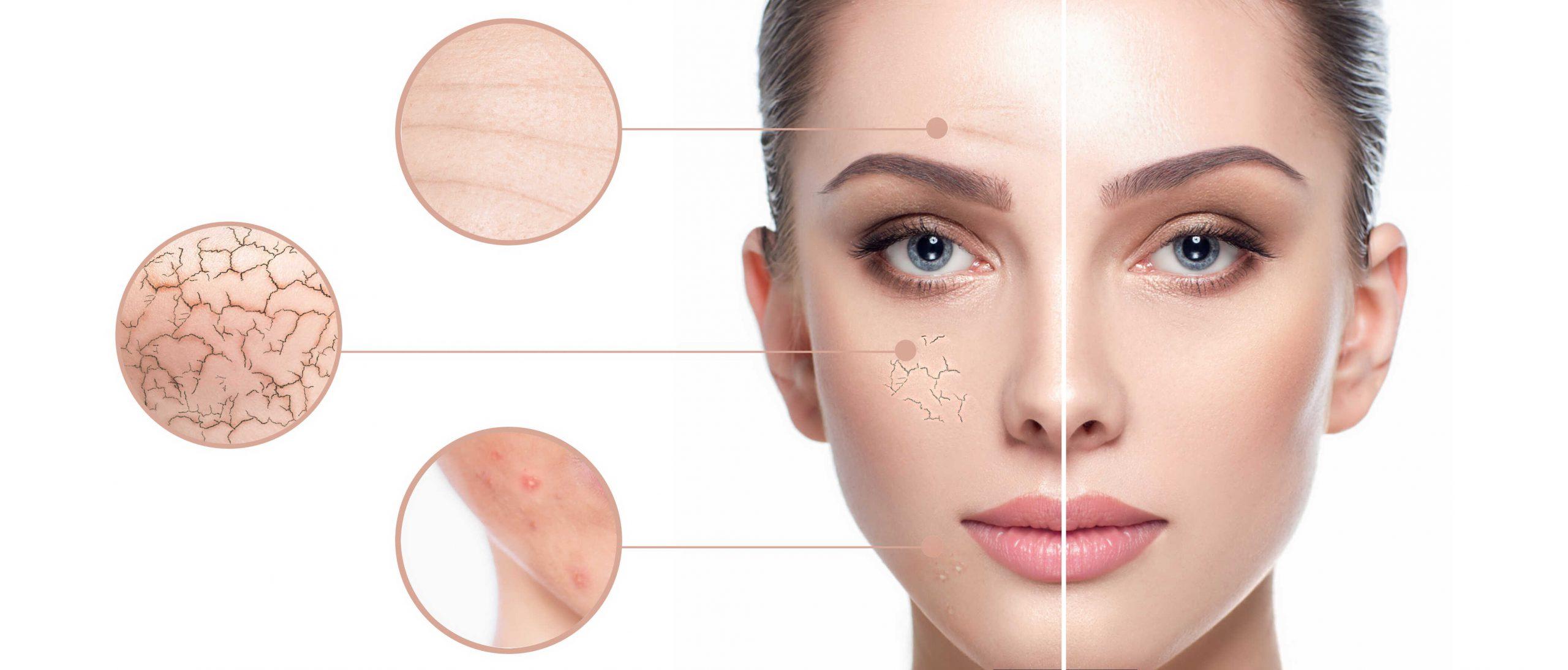 Proces regeneracji – odnowa komórkowa i tkankowa
