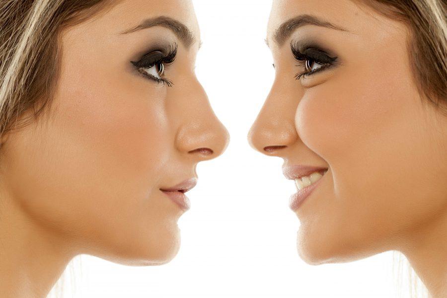 Nos w gabinecie medycyny estetycznej: jak bezoperacyjnie skorygować kształt nosa?