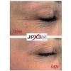 JPX3bio 5ml przed i po