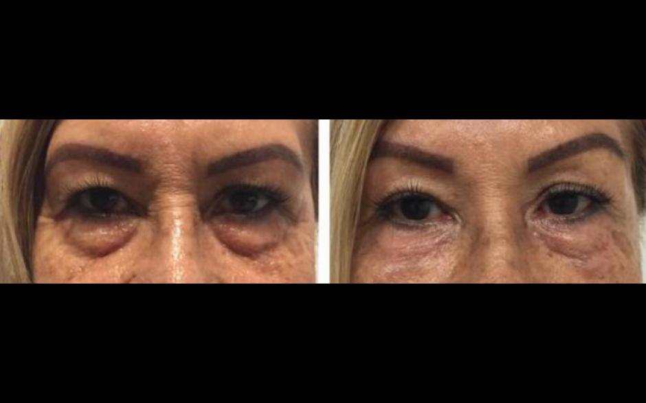 Redukcja obrzęków pod oczami