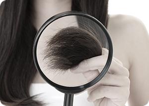 mezoterapia, Dr Cyj Hair Filler, mezoterapia skóry głowy, produkty na włosty, terapia peptydowa włosów, Venome Hair Filler, jak wzmocnić włosy, hair filler, srs hair capillaire, rrs XL Hair, produkty na łysienie, wypadające włosy wypadanie włosów, łysienie plackowate, zdrowe lśniące włosy, kosmetyki do włosów, kosmeceutyki do włosów, dermatologiczne produkty do włosów, trychologiczne, trychologia dermatic