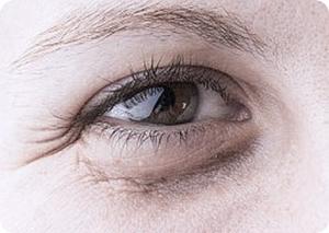 dolina łez, skóra wokół oczu, mezoterapia oczu, cienie pod oczami, venome amber succinate, dermaheal eyebag solutions, dark circle solution, worki pod oczami